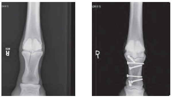 Radiographs before and after
